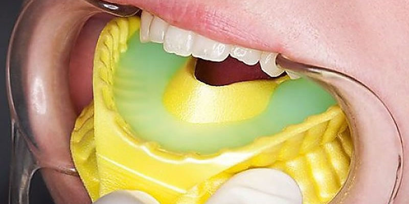 Fluoride Treatment Plaza Dental